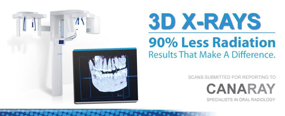 CTA4-3D-XRays2